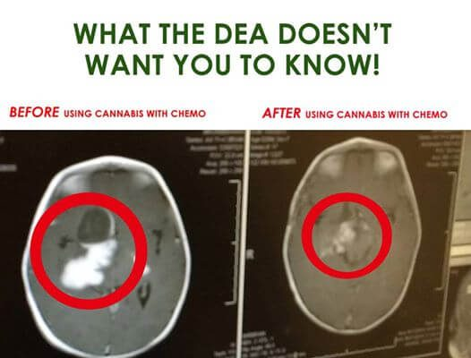 Марихуана и рак головного мозга