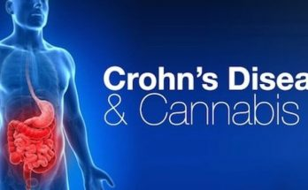 Каннабис и болезнь Крона